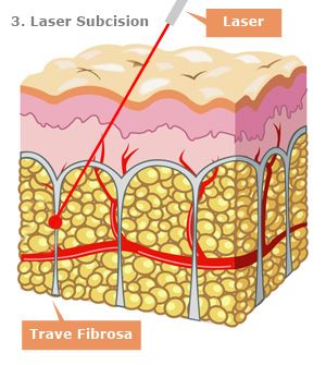 Laser Subcision